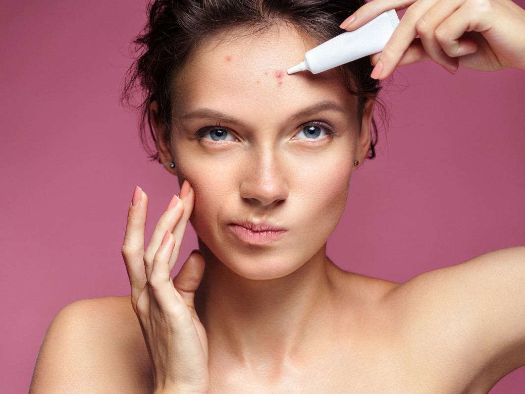 Have You Tried Everything to Manage Your Acne?