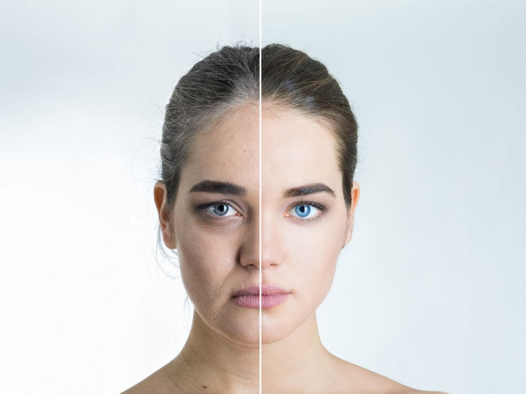 Counter Aging With Skin Treatments